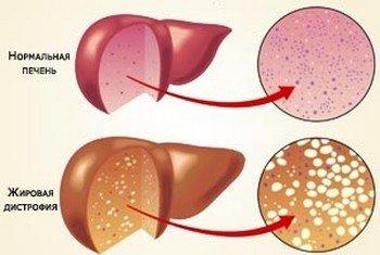 Жировая дистрофия печени (стеатоз) у КРС